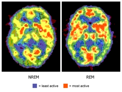 Two brain scan images with different patterns of colors.