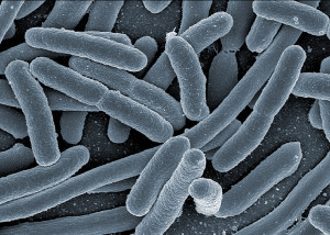 E. coli. One of the many residents of your gut. Image: Rocky Mountain Laboratories, NIAID, NIH.