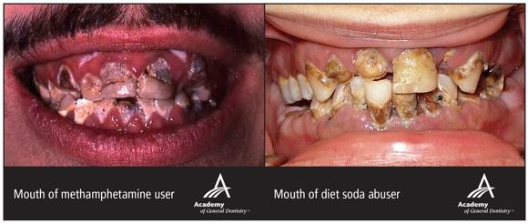 agd-meth-diet-soda