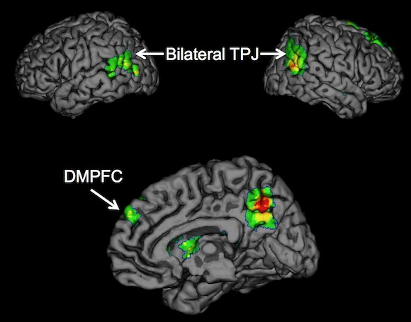Brain regions TPJ and DMPFC
