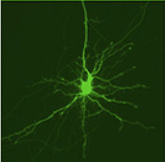striatal-neuron