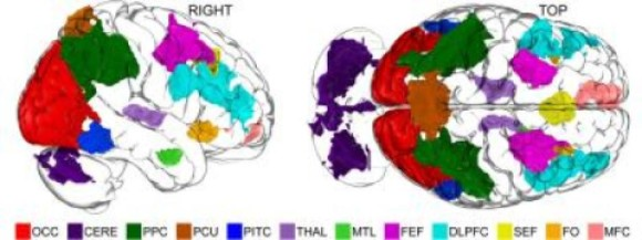 Eleven areas of the brain are showing differential activity levels in a Dartmouth study using functional MRI to measure how humans manipulate mental imagery. (Credit: Alex Schlegel)