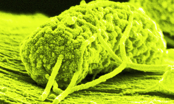 The microbe's wire-like tendrils are attached to a carbon filament to produce electricity. More than 100 of these