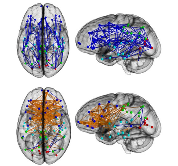 Striking differences in brain wiring between men and women