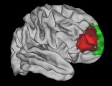 A uniquely human brain area?