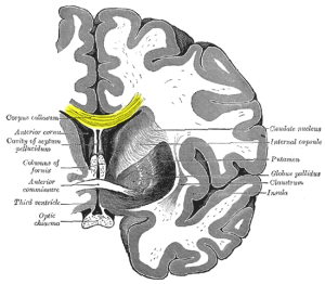 Corpus callosum running between the two hemispheres. Image: Gray's Anatomy via Wikipedia.