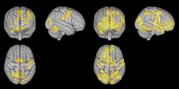 The left images show the brain during concentrative meditation, while images to the right show the brain during nondirective meditation. Image credit: NTNU