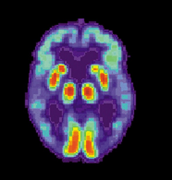 PET scan of the brain of a person with Alzheimer's Disease, showing a loss of function in the temporal lobe, via Wikimedia Commons.