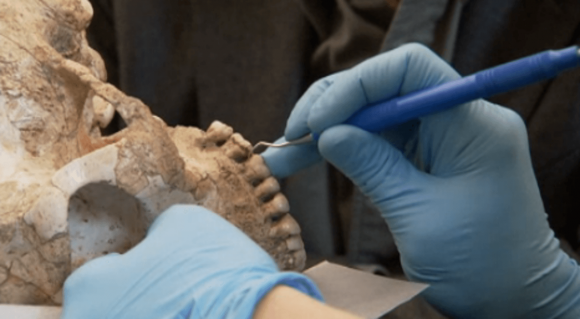 Scraping ancient teeth for clues about diet.