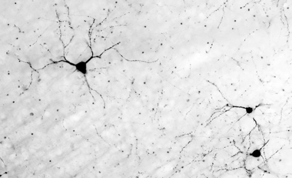Neurons do the work of transmitting thoughts. Image credit: Bryan Jones