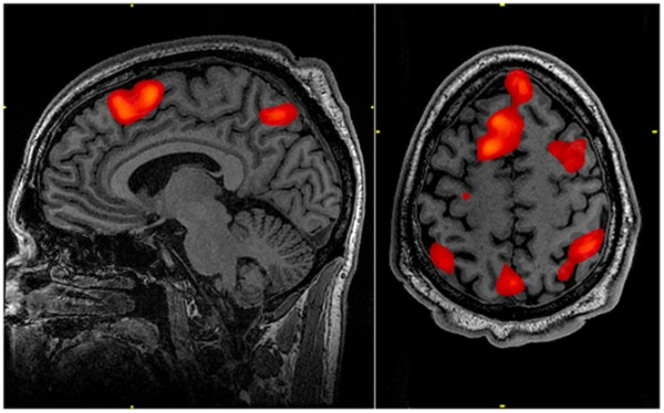 Usually researchers combine data from many fMRI scans to find the areas of the brain typically active during certain tasks. Image credit: John Graner