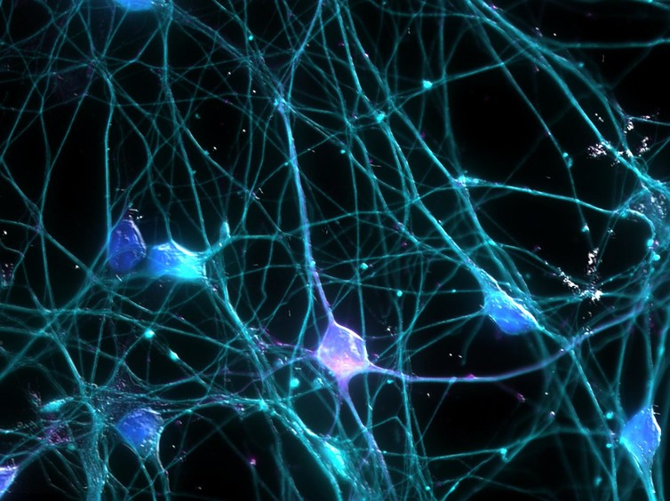 The simple building blocks of neurons together generate immense complexity. Image via UCI Research/Ardy Rahman.