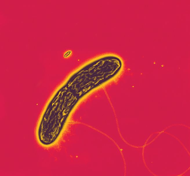 Tube-shaped black and yellow streaked bacterium with two filaments against dark pink background.