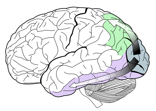 Drawing of the human brain with a green patch toward the back.
